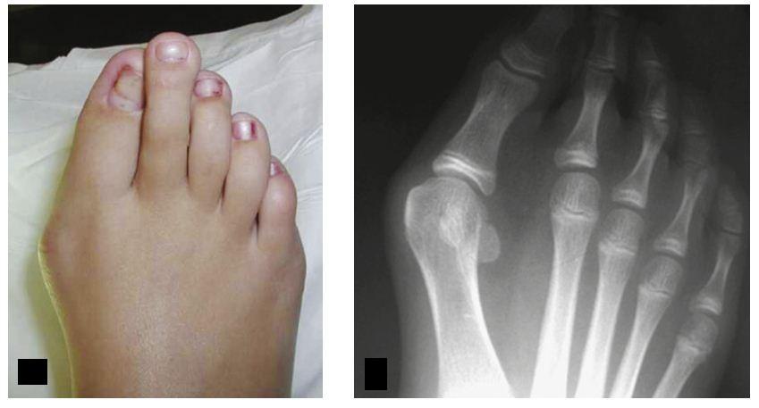 Вальгусная деформация второго пальца