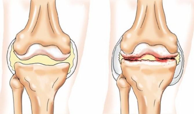 недифференцированный олигоартрит коленных суставов